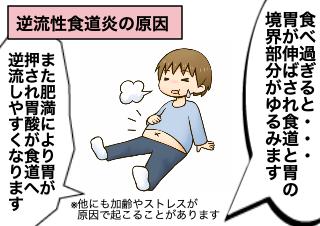 4コマ漫画「逆流性食道炎がおこるメカニズム」の3コマ目